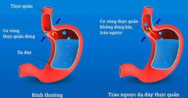 Chấm dứt Trào Ngược dạ dày bằng tinh nghệ Nano Curcumin?