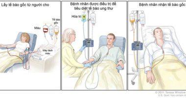 Các bệnh ung thư đang được điều trị bằng tế bào gốc hiện nay!